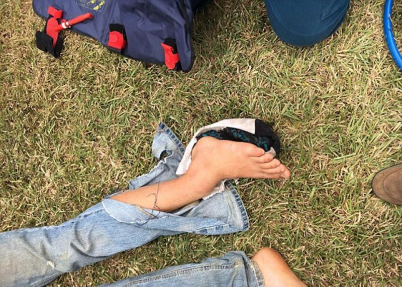 iphone-headphones-slice-teen-neck-motorbike-crash1
